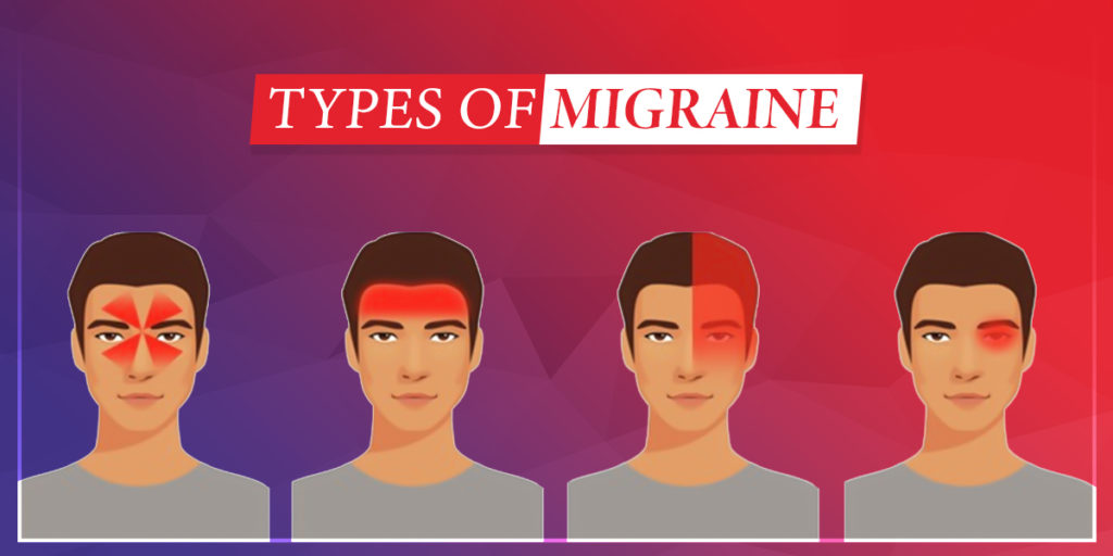 Best 4 CBD Oil For Migraine